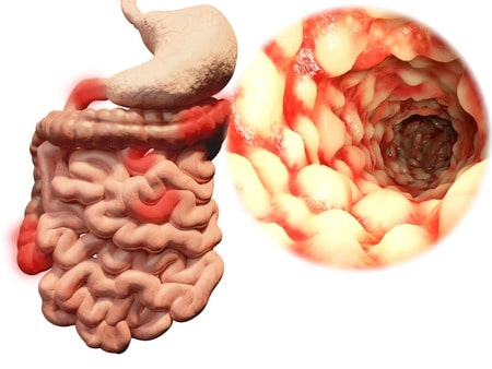 causes maladie de crohn
