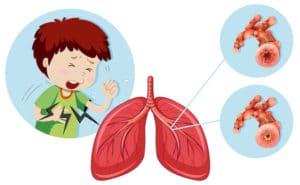 symptome embolie pulmonaire